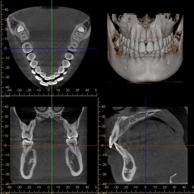 一人ひとりに適したインプラントで健康的な歯に