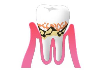 軽度歯周病(歯周炎)の症状
