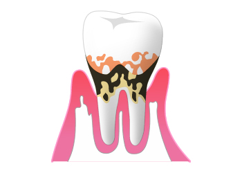 中度歯周病(歯周炎)の症状