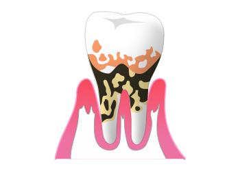 重度歯周病(歯周炎)の症状